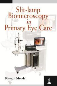 Slit-Lamp Biomicroscopy in Primary Eye Care