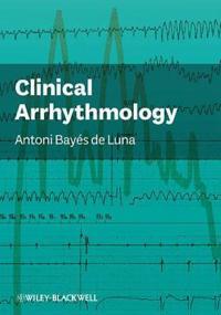 Clinical Arrhythmology