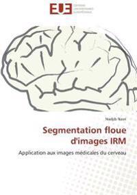 Segmentation floue d'images IRM