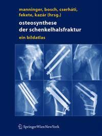 Osteosynthese Der Schenkelhalsfraktur