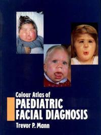 Colour Atlas of Paediatric Facial Diagnosis