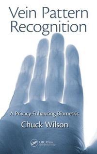 Vein Pattern Recognition
