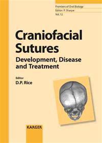 Craniofacial Sutures