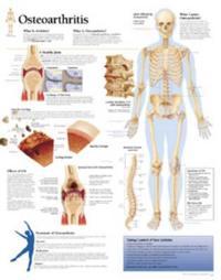 Osteoarthritis, Paper Chart